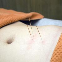 Kom voor een ontspannende acupunctuur behandeling. Hier zie je een buikbehandeling