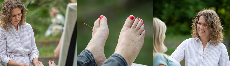 Je acupunctuurbehandeling